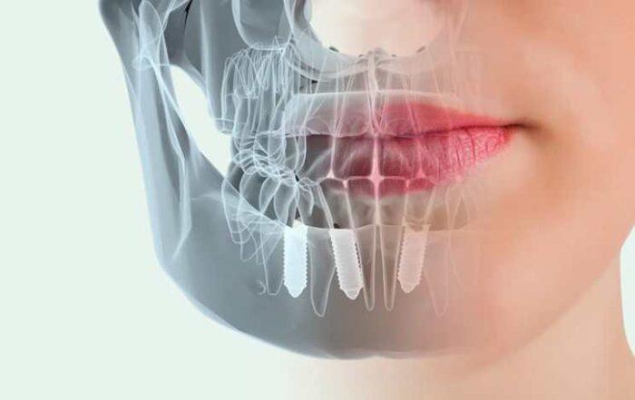 difusión de casos de agenesia dental